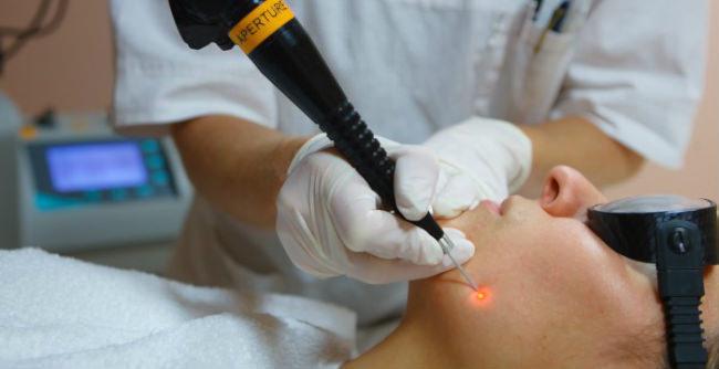 Удаление базалиомы лазером и сколько она заживает после операции