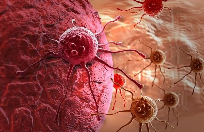 лечение рака желудка 4 стадии с метастазами
