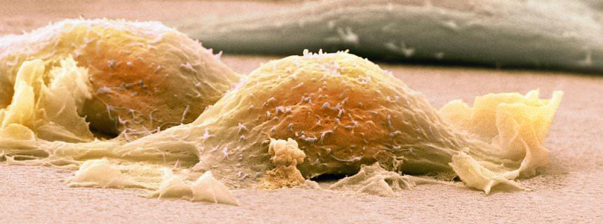 Клетка саркомы под микроскопом