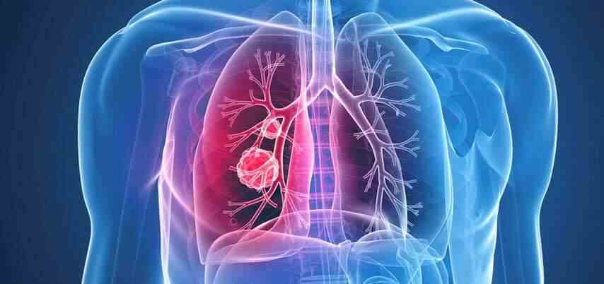Немелкоклеточный рак легкого