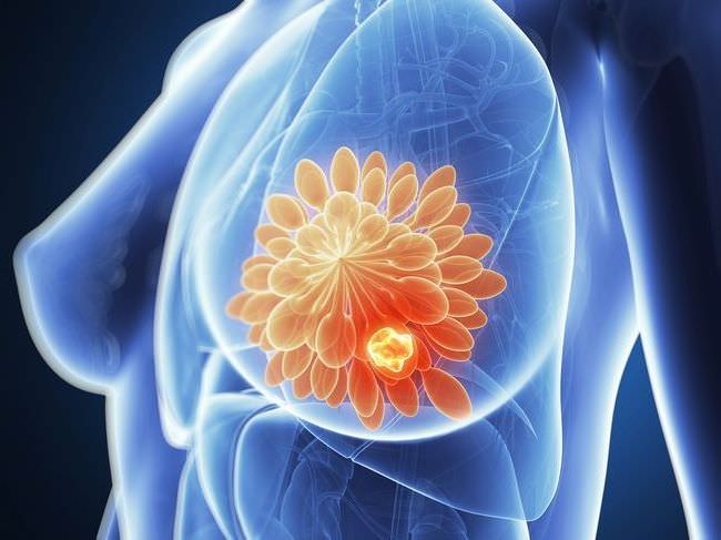 рак молочной железы 3а лечение
