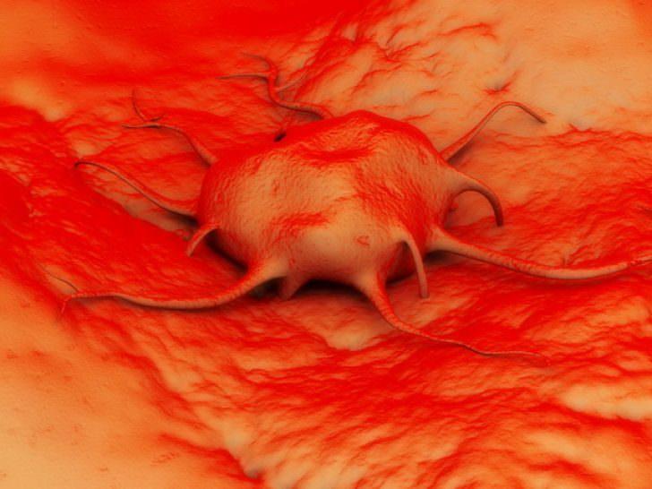 Диагностика рака поджелудочной железы - на ранней стадии, онкомаркер
