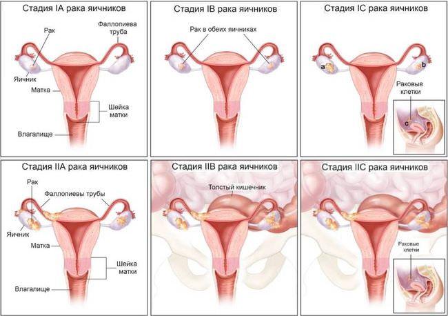 Стадии рака яичников