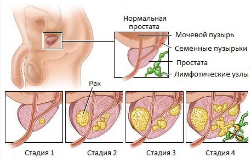 Классификация TNM