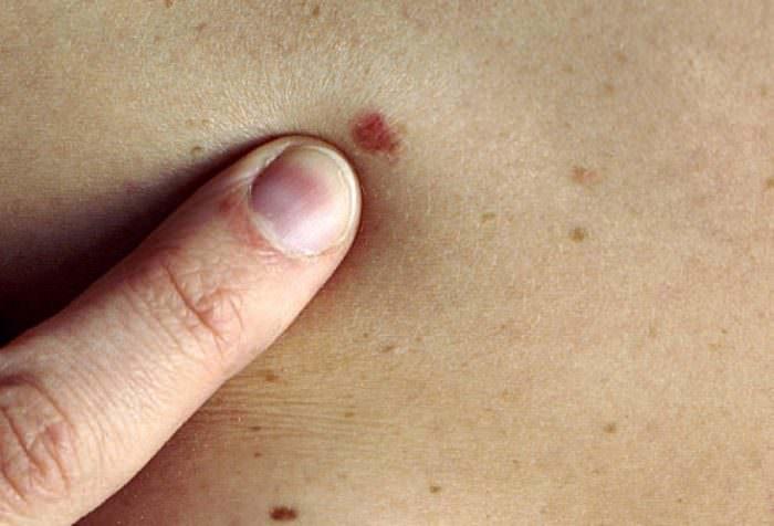 Самодиагностика меланомы
