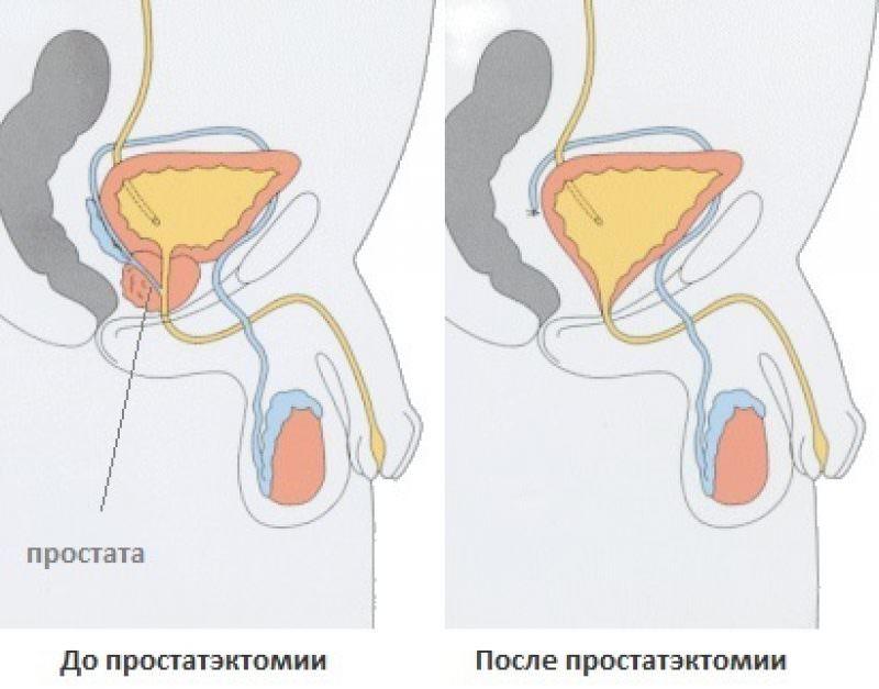 Простатиты у мужчин признаки операция картофельные свечи и простатит