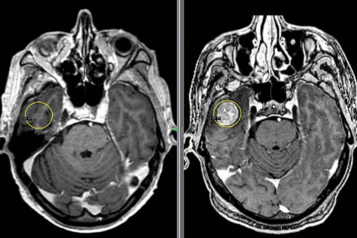 Рентген головы