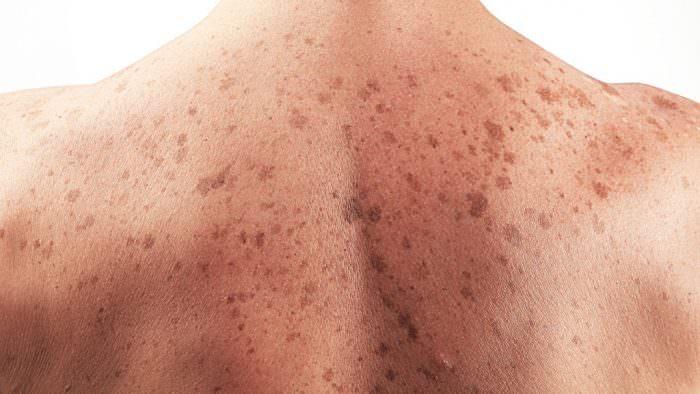 Злокачественная опухоль кожи