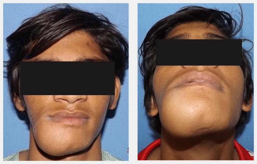 Опухоль на лице