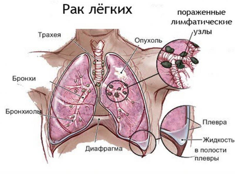 Заболевание дыхательной системы