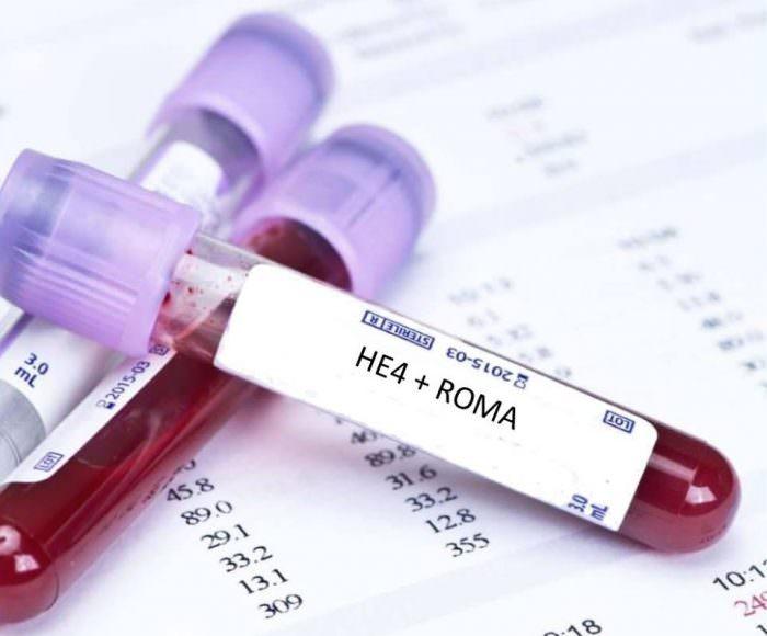 Индекс РОМА в гинекологии, что это такое?
