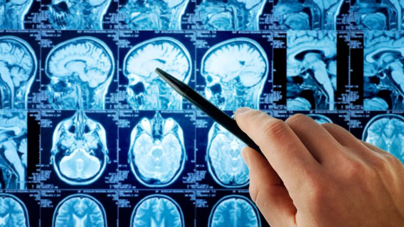 Рак мозга сколько с ним живут