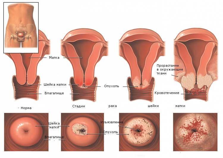 лечение рак матки 3 степени