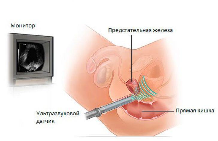 Рак простаты - диагностика и лечение рака предстательной железы в центре онкологии ЕМС.