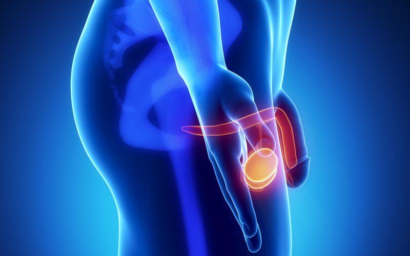 Методы лечение рака яичка