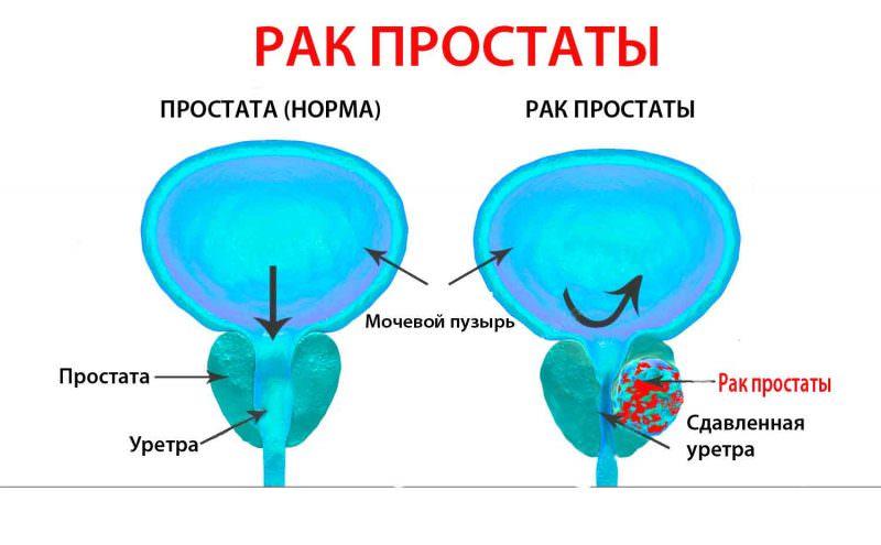 Жизнь с аденомой простаты (ДГПЖ)
