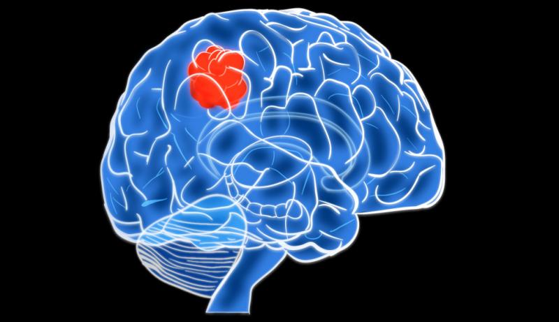 Рак головного мозга 4 степени: классификация и типы опухоли, прогноз выживаемости, возможное лечение