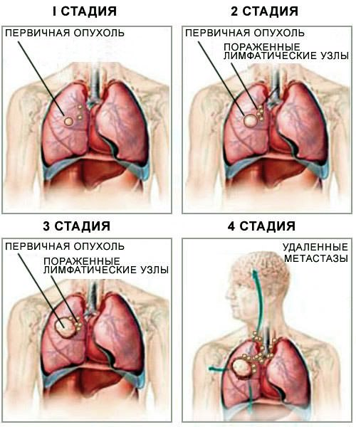 Этапы болезни