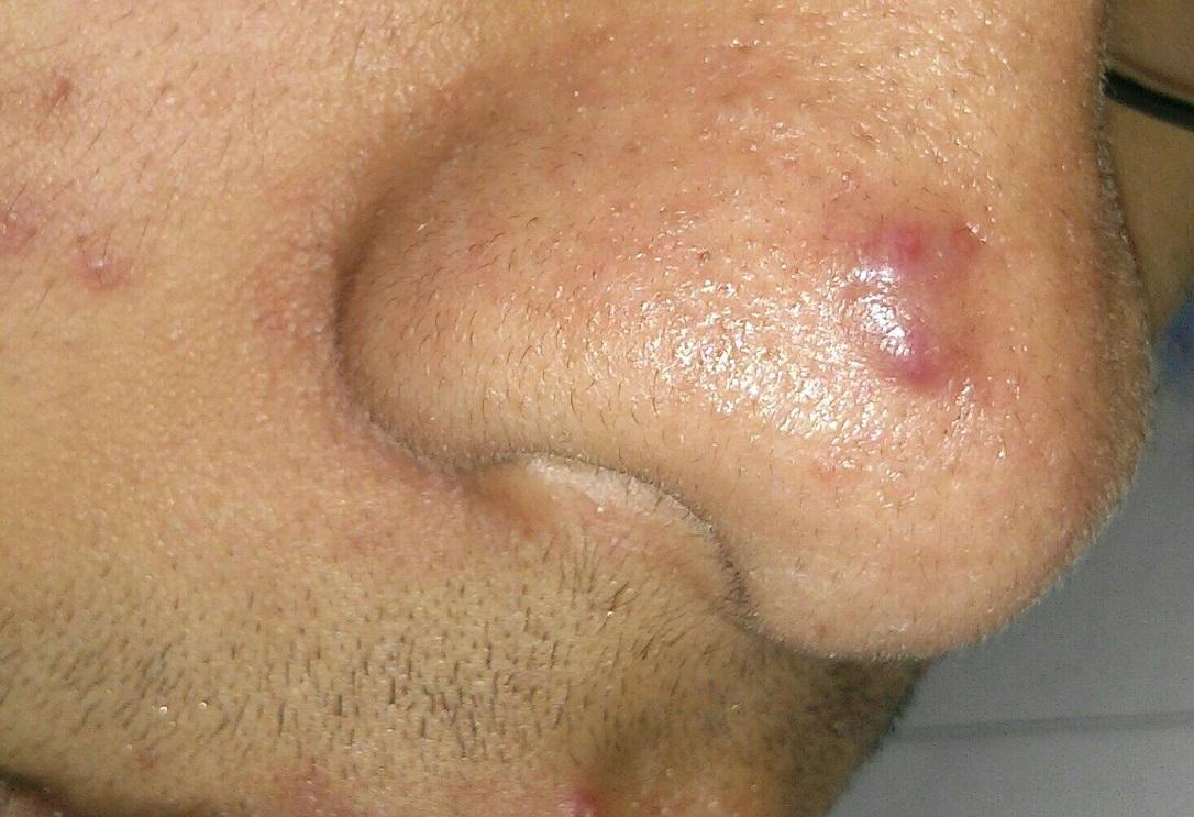 Атерома на носу