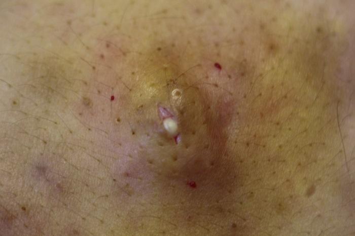 Фолликулярная киста клетчатки под кожей
