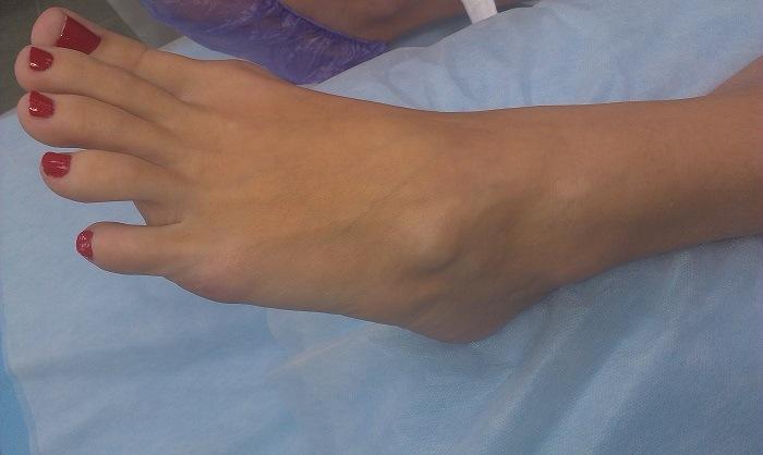 Гигрома на ноге