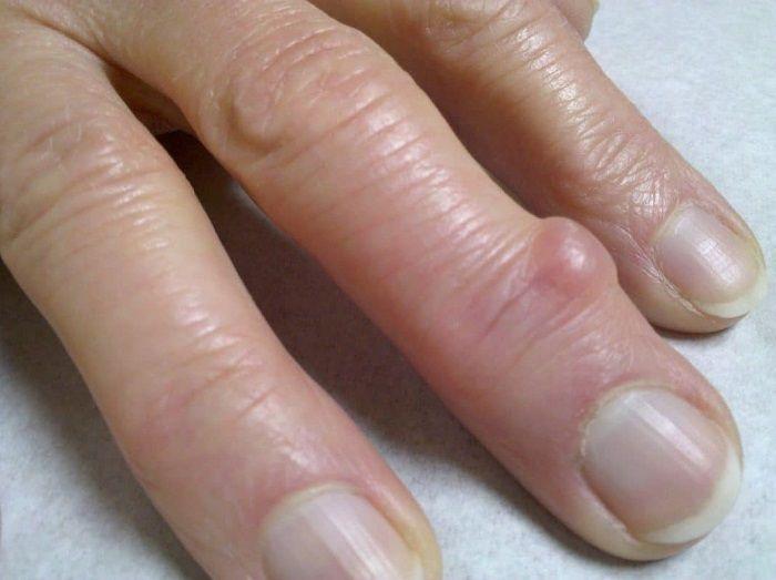 Гигрома пальца кисти