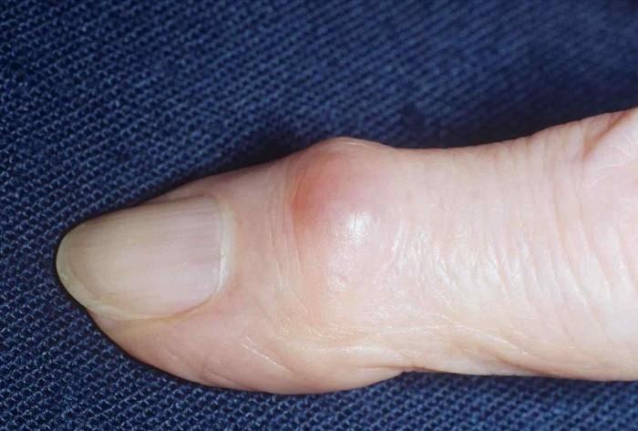 Гигрома пальца