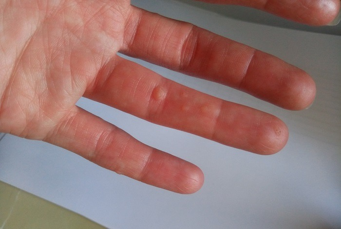 Образования, появляющиеся на пальце со стороны ладони
