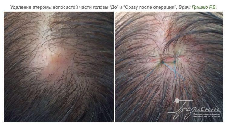 удаление атеромы врачем Гришко