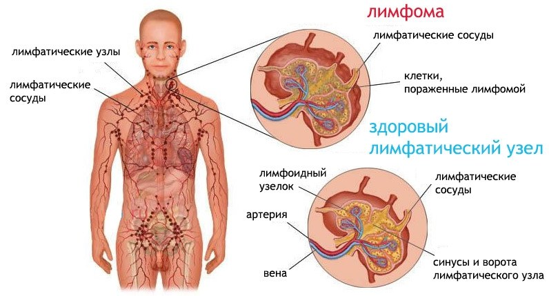 лимфома Ходжкина