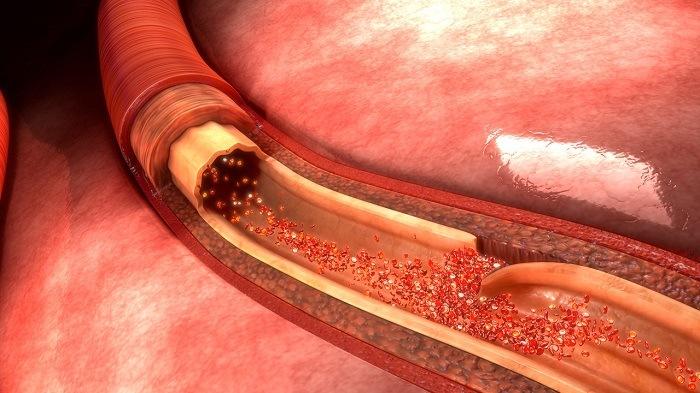 Повреждение кровеносных сосудов
