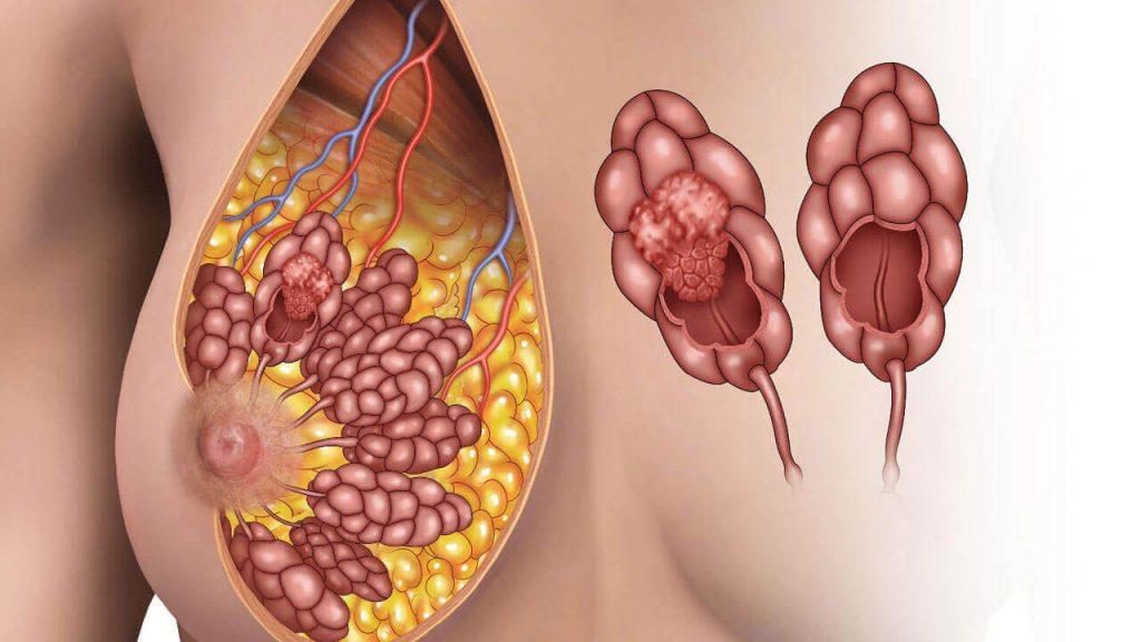 Рак молочных желез
