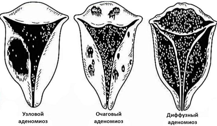 Аденомиоз матки типы