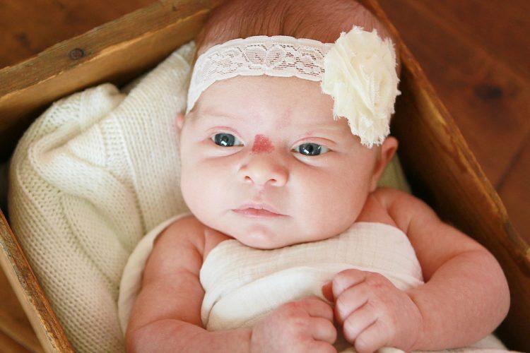 Гемангиома у новорожденных на теле причины возникновения