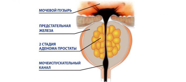 Атерома простаты 2 стадии