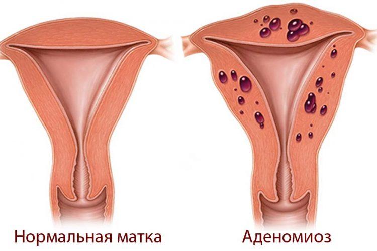 Аденомиоз матки