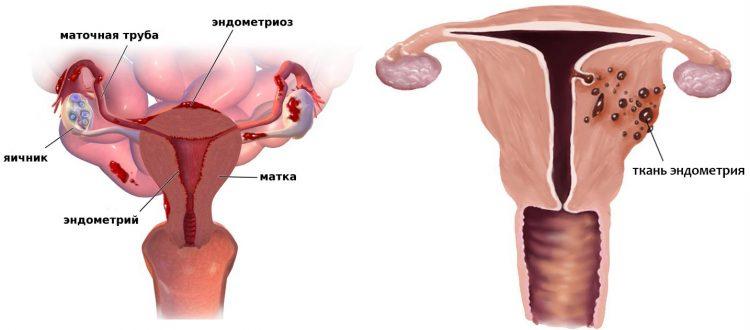Аденомиоз и эндометриоз в чем разница