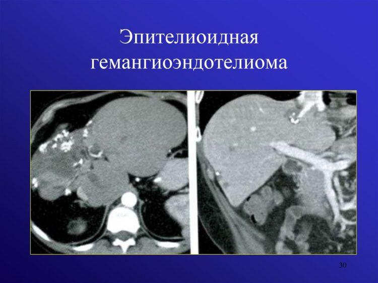 эпителиоидная гемангиоэндотелиома