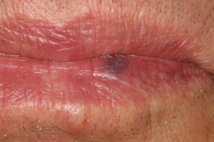 Венозная гемангиома губы