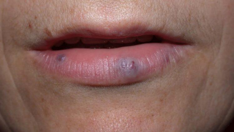 Гемангиома губы