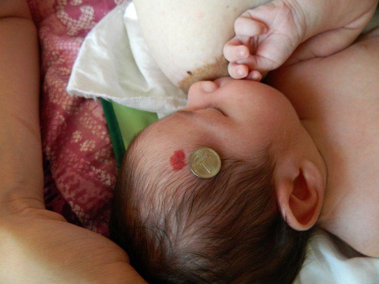 Гемангиома у малыша