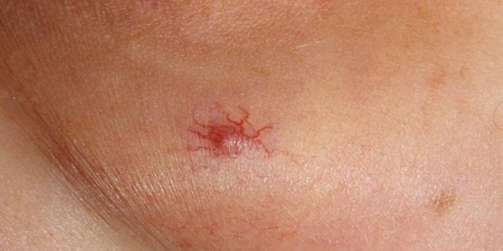 капиллярная гемангиома