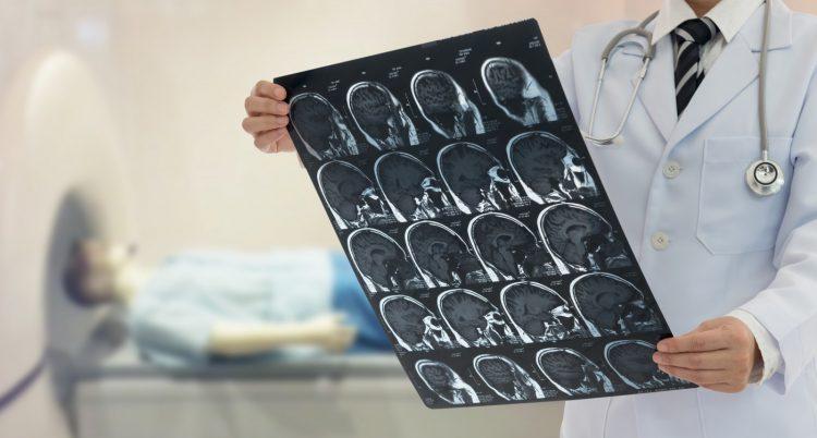 осмотр мозга