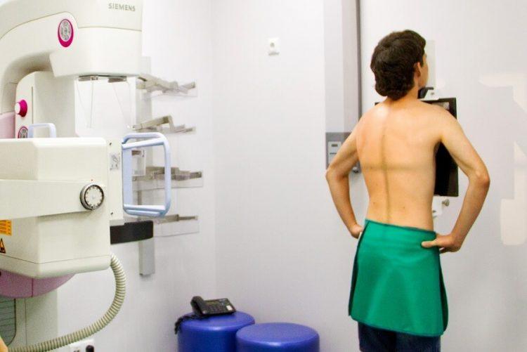 Рентген позвоночника