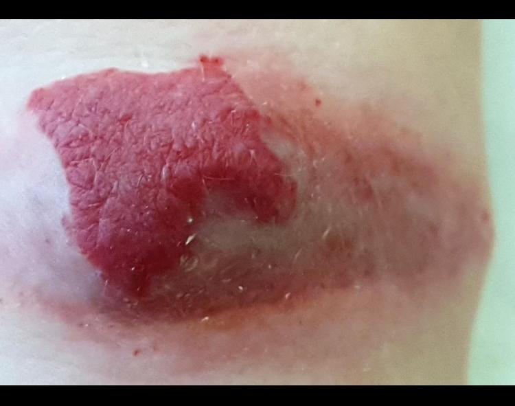 Как выглядит гемангиома кожи у взрослого человека: фото и причины болезни на разных частях тела