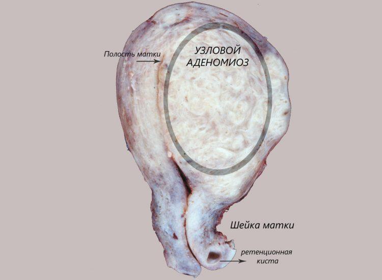 узловой аденомиоз матки