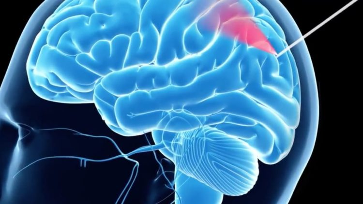 биопсия мозга