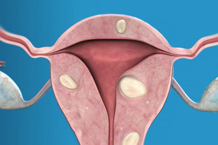 интерстициальная форма миомы матки