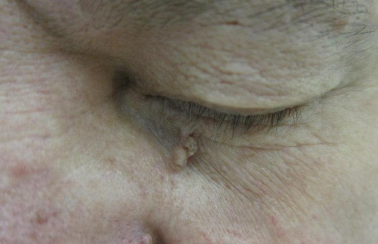 кожная фиброма