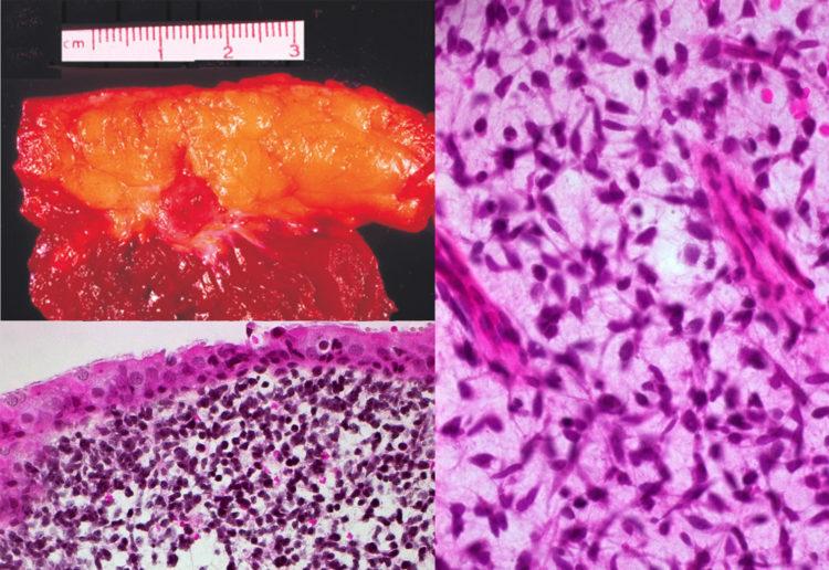 эмбриональная рабдомиосаркома